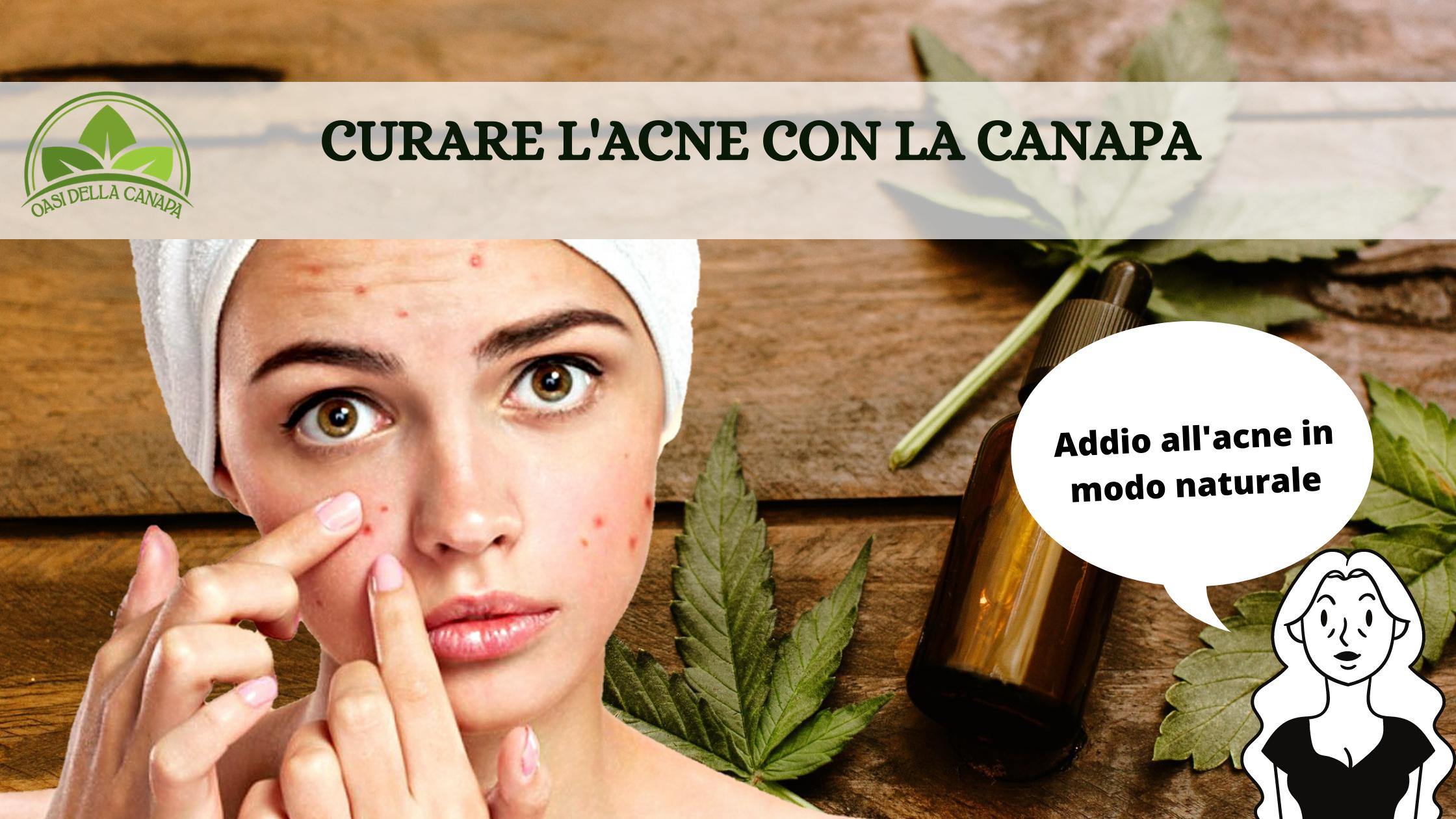 Come curare l'acne in modo naturale con la canapa